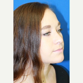 18-24 year old woman treated with Rhinoplasty after 3741484