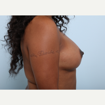 Breast Augmentation after 3340276