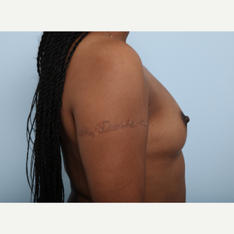 Breast Augmentation before 3340276