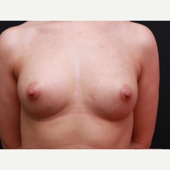25-34 year old woman treated with Breast Augmentation after 3167726