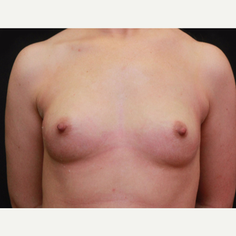 25-34 year old woman treated with Breast Augmentation before 3167726
