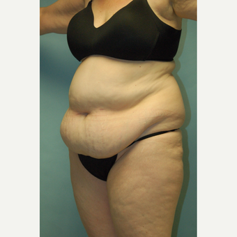 "58 year old woman, 5'6"", 188 lbs. four months after lipoabdominoplasty before 3771618"