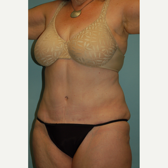 "58 year old woman, 5'6"", 188 lbs. four months after lipoabdominoplasty after 3771618"