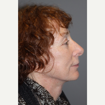 55-64 year old woman treated with Facelift after 3147935
