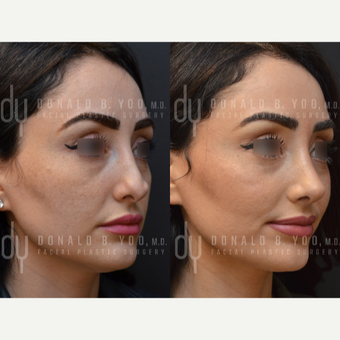 Revision Rhinoplasty before 3116251