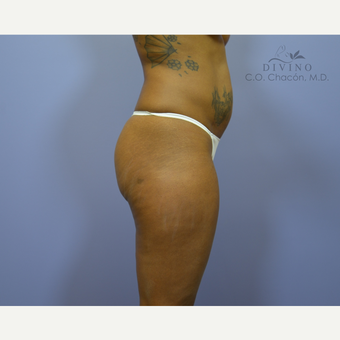 35-44 year old woman treated with Liposuction before 3391622