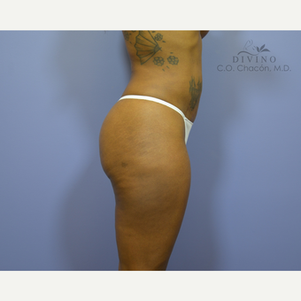 35-44 year old woman treated with Liposuction after 3391622