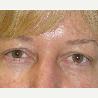 45-54 year old woman treated with Eyelid Surgery before 3253512