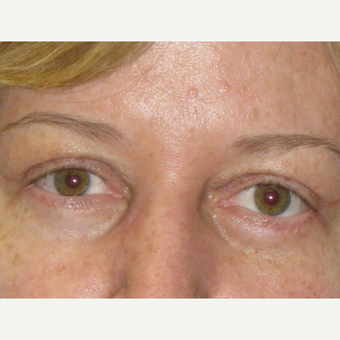 45-54 year old woman treated with Eyelid Surgery after 3253512