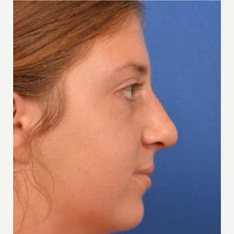 18-24 year old woman treated with Rhinoplasty after 3220381