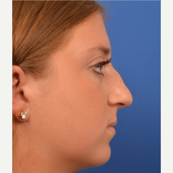 18-24 year old woman treated with Rhinoplasty before 3220381