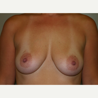 35-44 year old woman treated with Breast Implants before 3153829