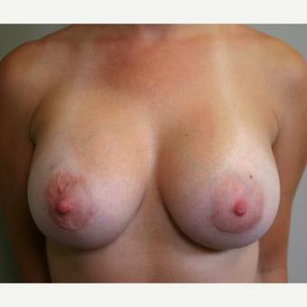 35-44 year old woman treated with Breast Implants after 3153829