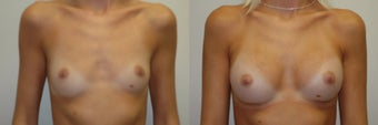 Breast Augmentation with Implants before 1271888