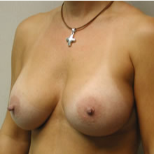 Breast Augmentation after 3680712