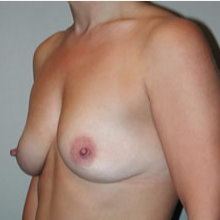 Breast Augmentation before 3680712