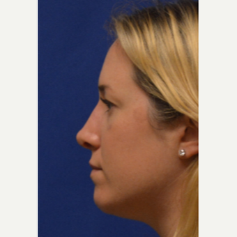 25-34 year old woman treated with Rhinoplasty after 3125042