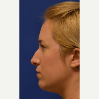 25-34 year old woman treated with Rhinoplasty before 3125042