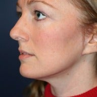 35-44 year old woman treated with Facelift after 1564065