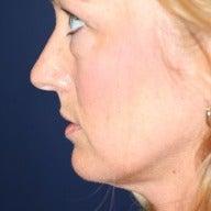 35-44 year old woman treated with Facelift before 1564065