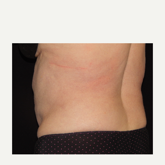 65-74 year old woman treated with CoolSculpting before 3844048