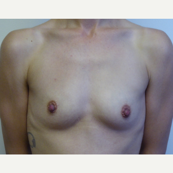 25-34 year old woman treated with Breast Implants before 3832833