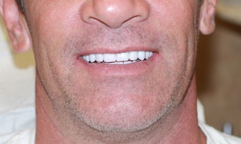40 year old Male treated with All-on-4 Dental Implant Procedure after 1053417