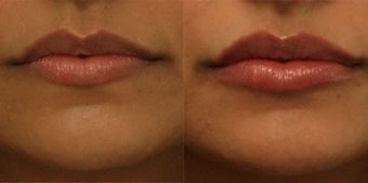 Lip Augmentation before 910728