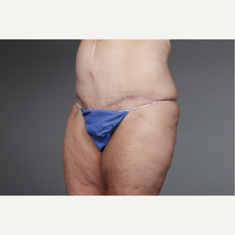 45-54 year old woman treated with Tummy Tuck after 3046742