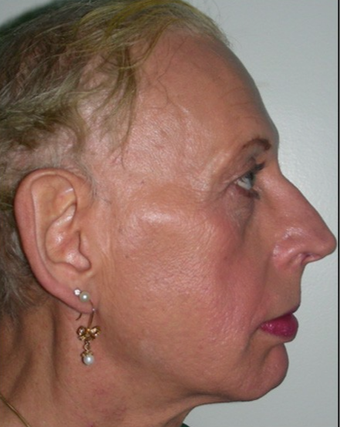 45-54 year old woman treated with Facial Feminization Surgery before 2052743