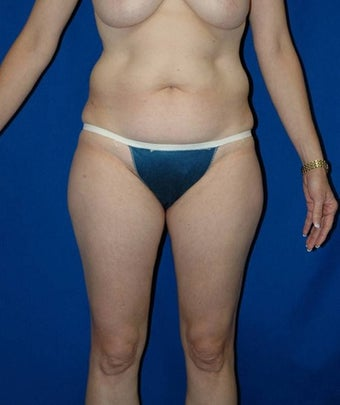 35-44 year old woman treated with SAFELipo before 3126302