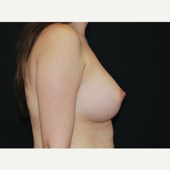 25-34 year old woman treated with Breast Implants after 3651071