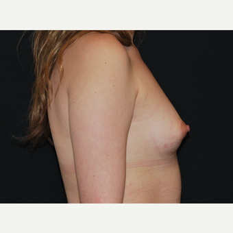 25-34 year old woman treated with Breast Implants before 3651071