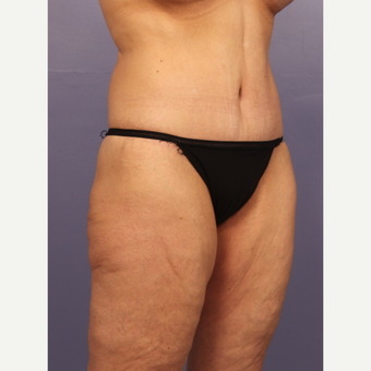 45-54 year old woman treated with Body Lift after 3666067