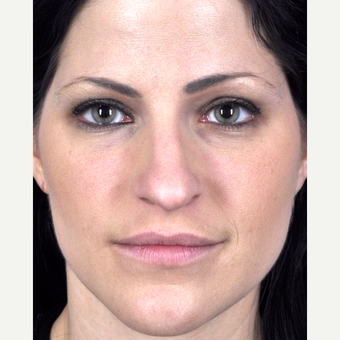 25-34 year old woman treated with Rhinoplasty before 3815687