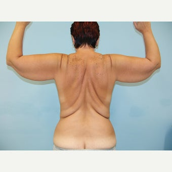 35-44 year old woman treated with Body Lift 1873159