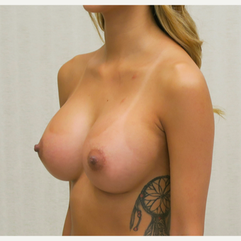 18-24 year old woman treated with Breast Augmentation after 3684850