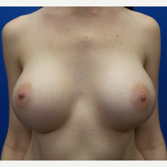 18-24 year old woman treated with Breast Augmentation after 3288452