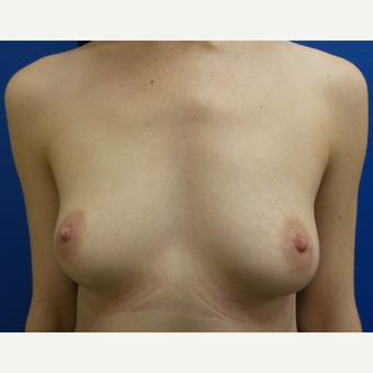 18-24 year old woman treated with Breast Augmentation before 3288452