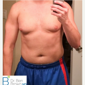 Gynecomastia treatment. before 3486933