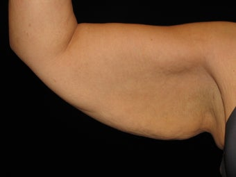 43 y.o. female after gastric bypass surgery with arm laxity before 1452490