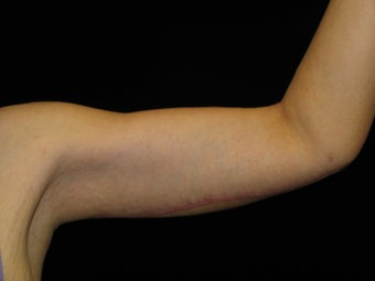 43 y.o. female after gastric bypass surgery with arm laxity 1452490