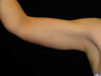 43 y.o. female after gastric bypass surgery with arm laxity after 1452490