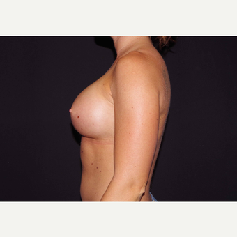 25-34 year old woman treated with Breast Implants after 3440975