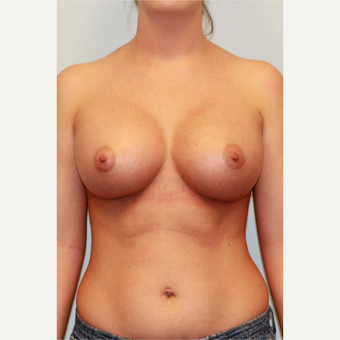 18-24 year old woman treated with Breast Implants after 3027229