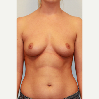 18-24 year old woman treated with Breast Implants before 3027229
