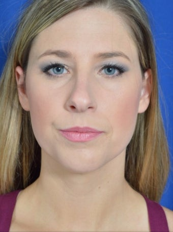 25-34 year old woman treated with Rhinoplasty before 3271480