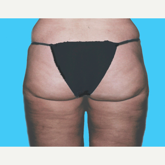 Liposuction after 3810650