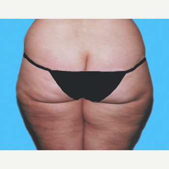 Liposuction before 3810650