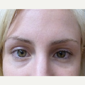 25-34 year old woman treated with Restylane before 3715427